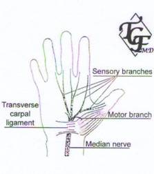 Carpal Tunne Syndrome