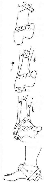 ankletape
